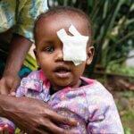 Ein Kleinkind aus Äthiopien in einem lilanen Shirt und einer Augenbinde über dem rechten Auge wird aufrecht gehalten und blickt direkt in die Kamera.