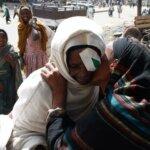Eine Frau mit einem dunklen Kopftuch küsst eine andere Frau in einem weißen Kopftuch und einem Verband auf dem Auge auf die Wange.