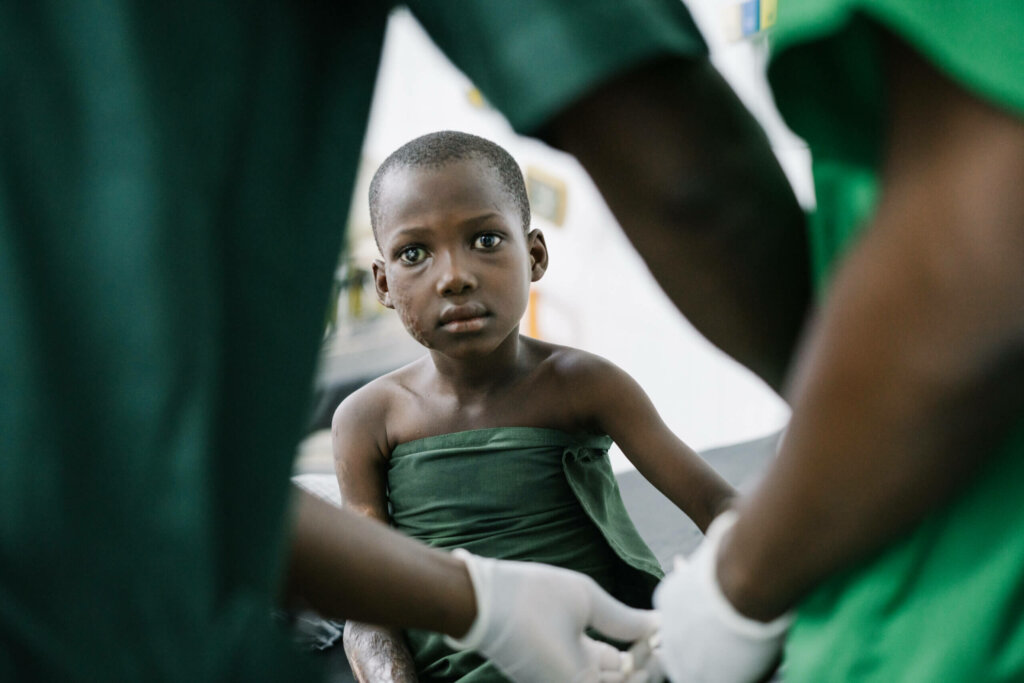 Boy sitting and staring right at the camera with a cataract and a detached retina on the left side of his face. He is wearing a green hospital gown and two doctors with green uniforms are approaching him, ready to start his operation.
